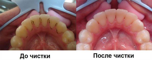 Химическая чистка налета на зубах