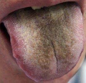 Желто-коричневый налет на языке
