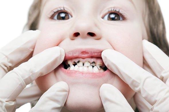 черный налет у ребенка на зубах