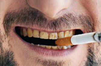 Налет от сигарет