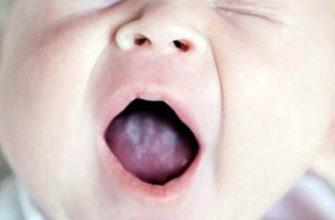 Налет у ребенка во рту