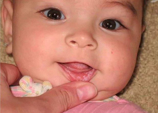 белый налет на губах у ребенка