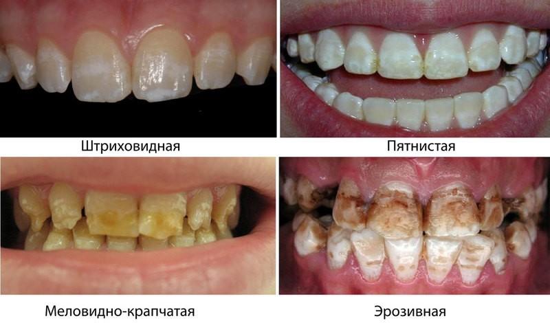 Хроническое заболевание зубов