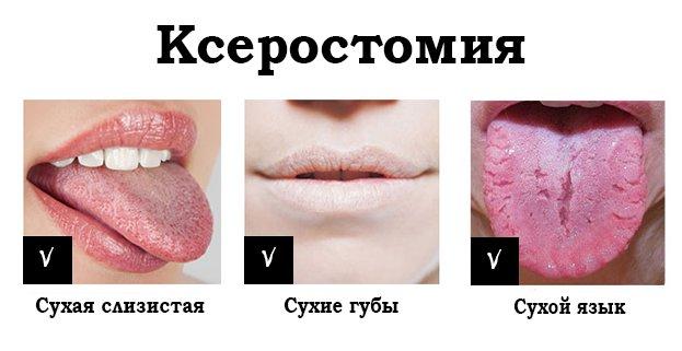 Ксеростомия признаки