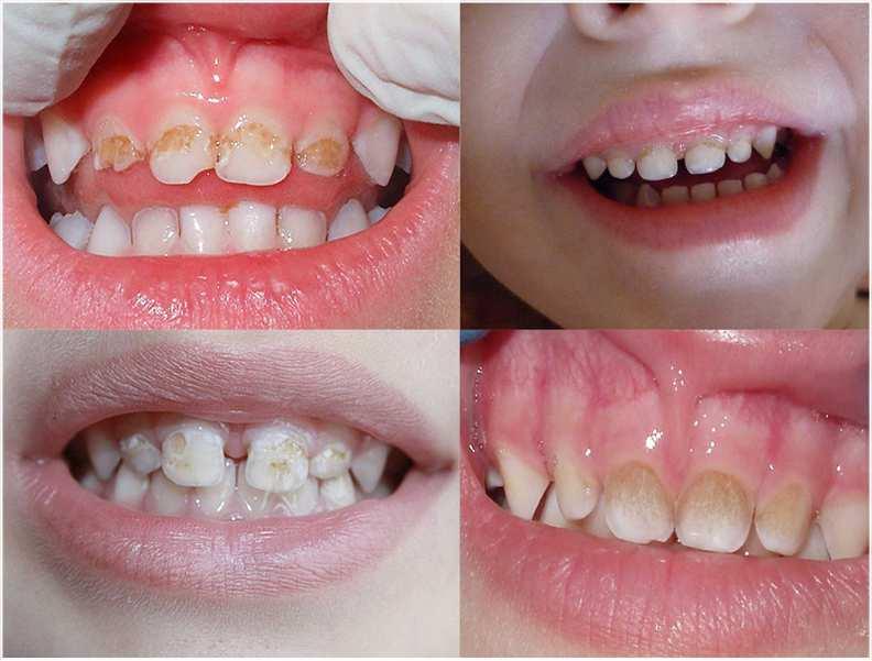 Темнеют зубы у ребенка