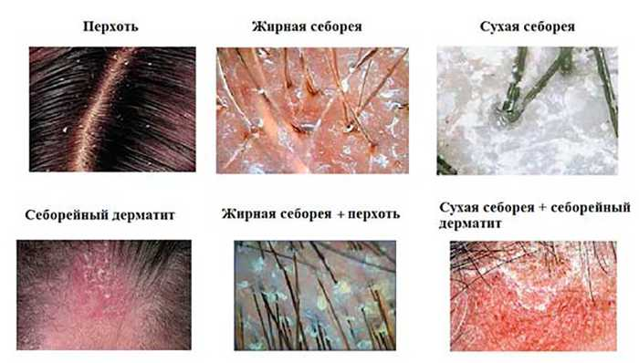Заболевания кожных покровов головы