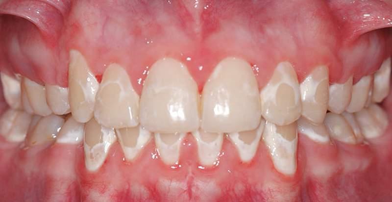 Белый налет на зубах