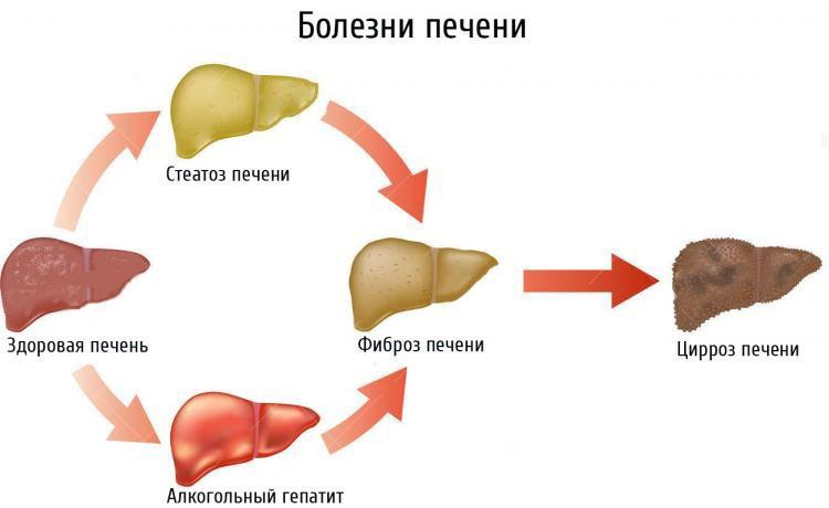 Болезни печени вызывающие налет на языке