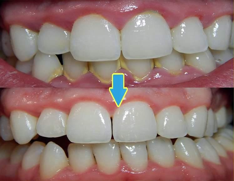 Налет на зубах и деснах