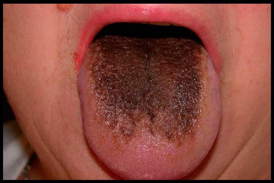 Темно - коричневый налет на языке