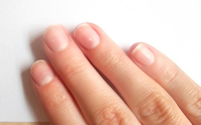 Белый налет на ногтях