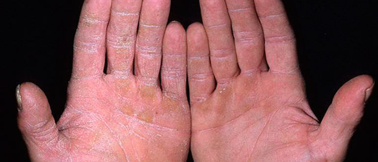 Белый налет на коже рук