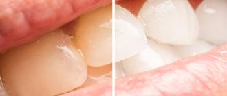 Как удалить желтый налет с зубов