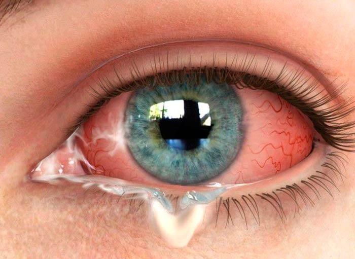 Налет на глазах