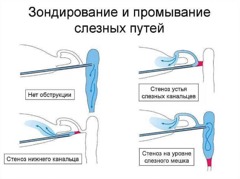 Промывание слезных каналов