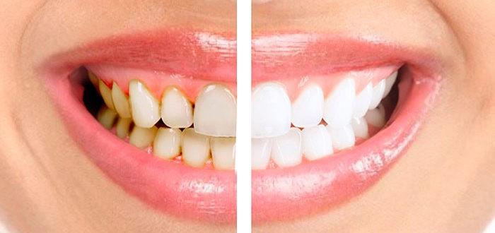 Серый зубной налет