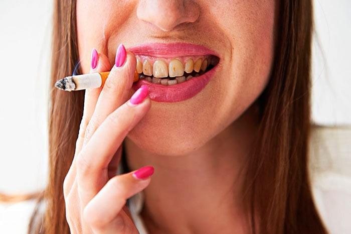 Желтые от курения зубы