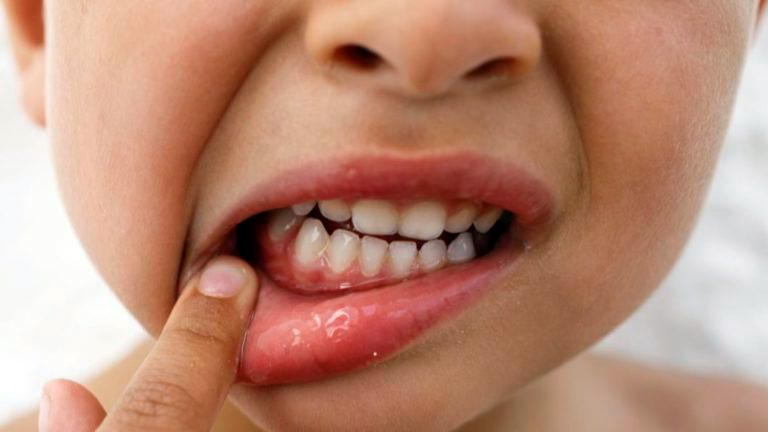Маргинальный гингивит у ребенка